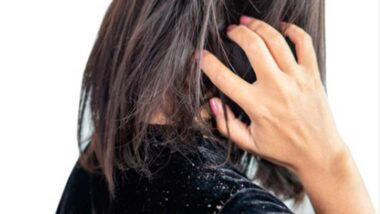 cabello con caspa